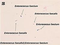 Faecalisfaecium_3